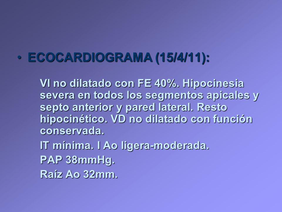ECOCARDIOGRAMA (15/4/11):