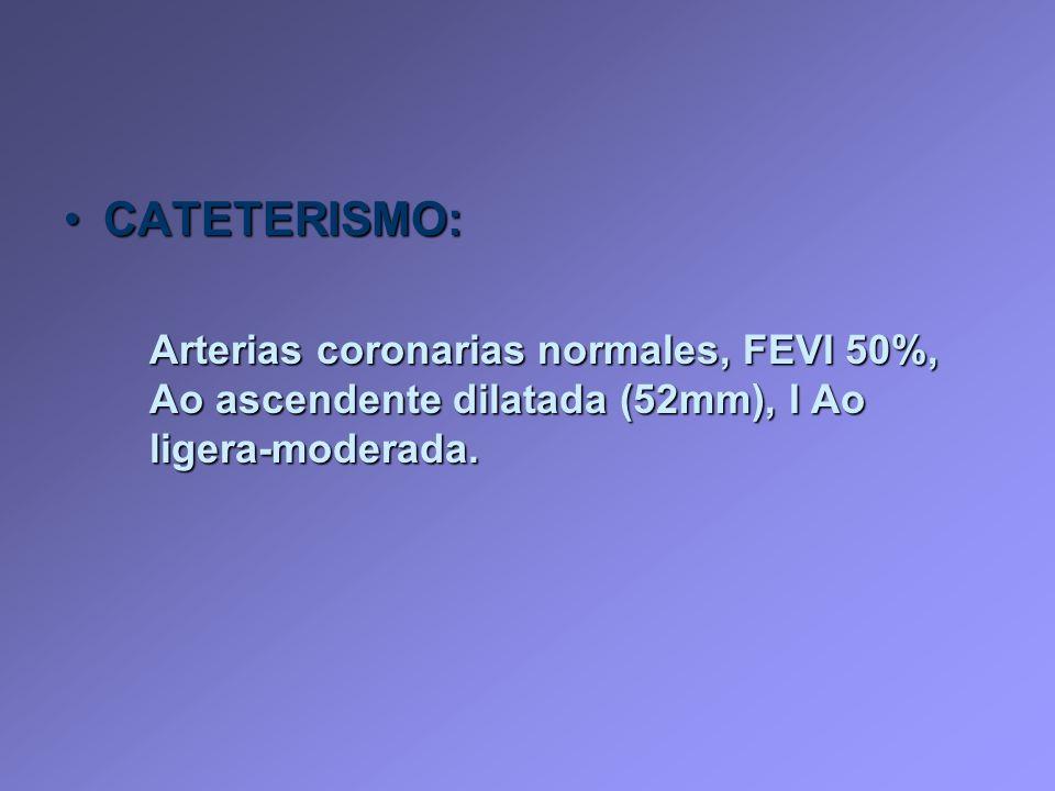 CATETERISMO: Arterias coronarias normales, FEVI 50%, Ao ascendente dilatada (52mm), I Ao ligera-moderada.