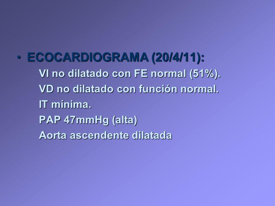 ECOCARDIOGRAMA (20/4/11): VI no dilatado con FE normal (51%).