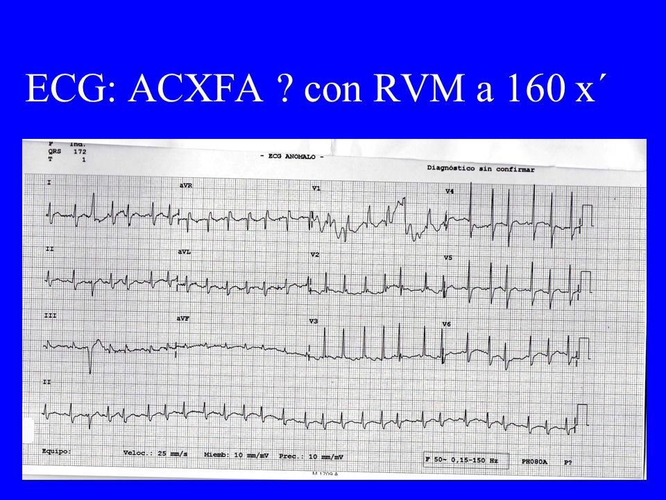 ECG: ACXFA con RVM a 160 x´