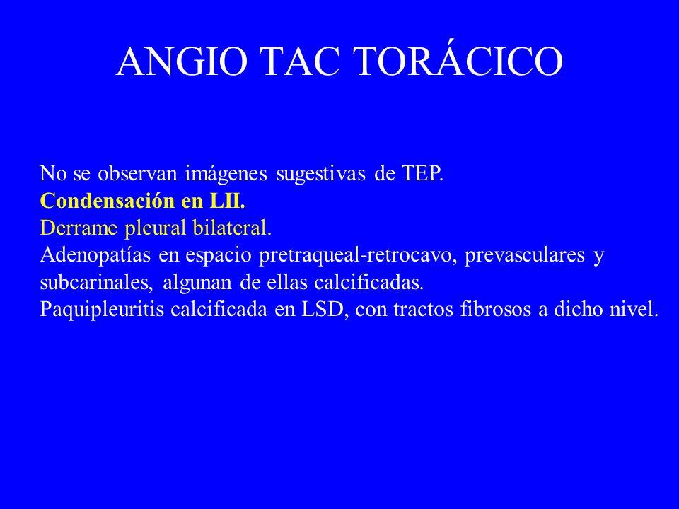 ANGIO TAC TORÁCICO No se observan imágenes sugestivas de TEP.
