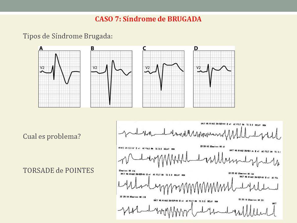 CASO 7: Síndrome de BRUGADA