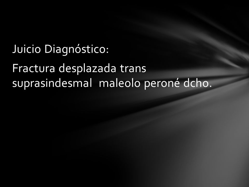 Juicio Diagnóstico: Fractura desplazada trans suprasindesmal maleolo peroné dcho.