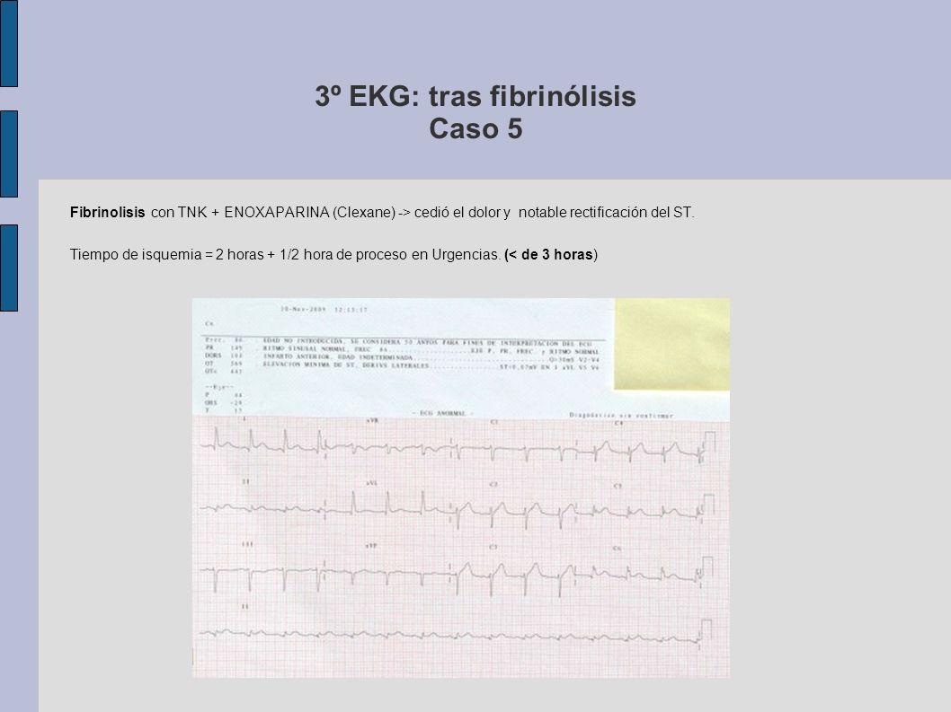 3º EKG: tras fibrinólisis Caso 5