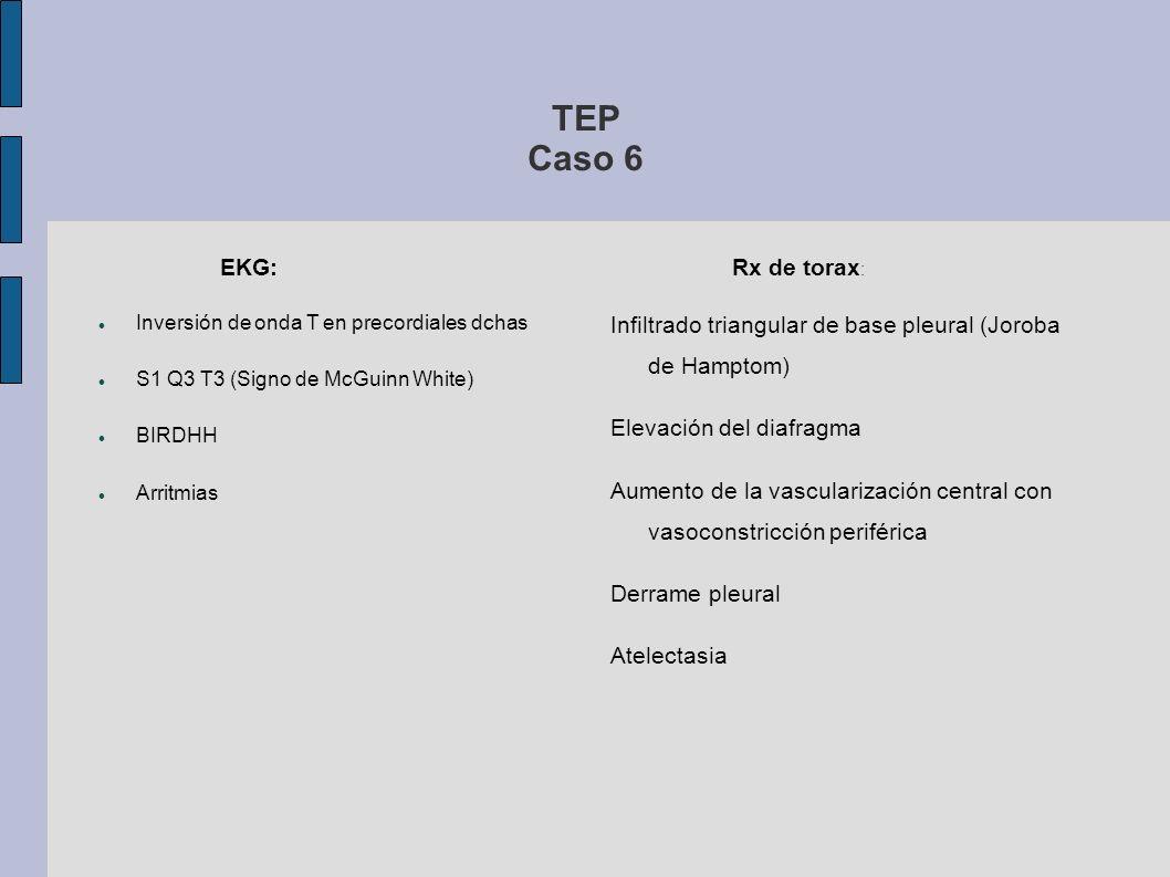 TEP Caso 6 EKG: Rx de torax:
