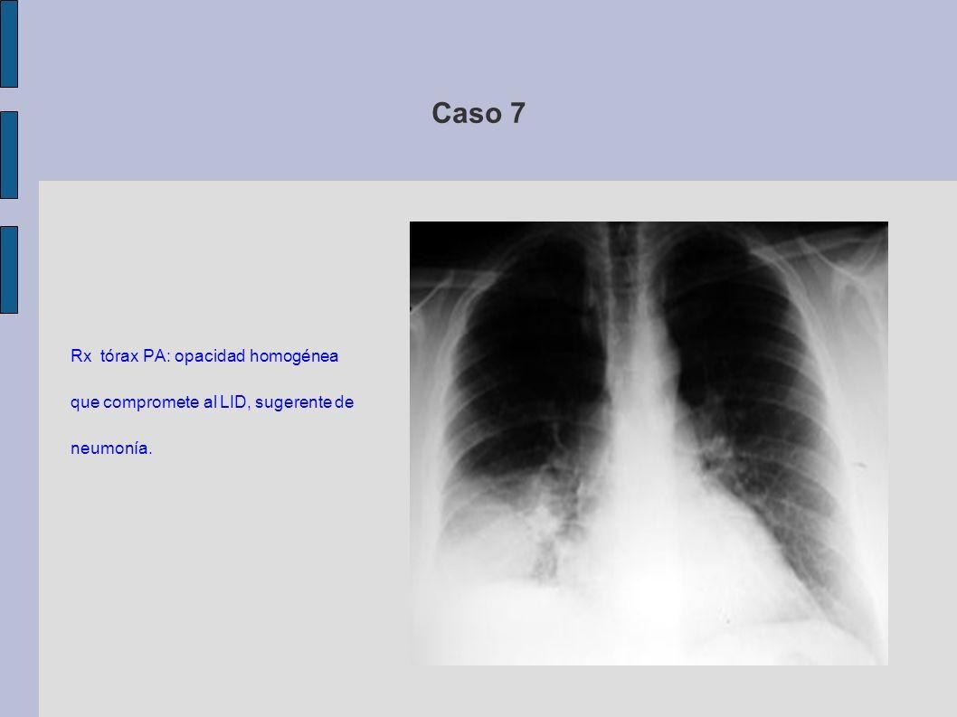 Caso 7 Rx tórax PA: opacidad homogénea