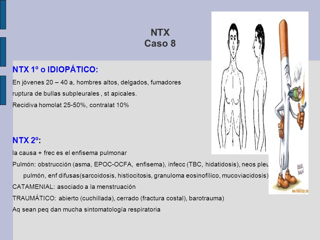 NTX Caso 8 NTX 1º o IDIOPÁTICO: NTX 2º: