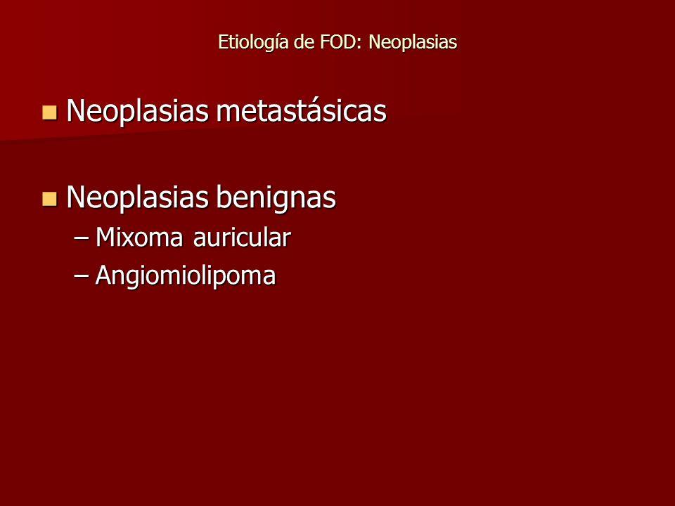 Etiología de FOD: Neoplasias