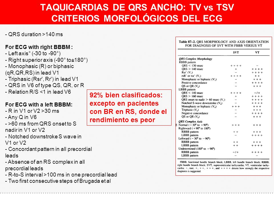 TAQUICARDIAS DE QRS ANCHO: TV vs TSV CRITERIOS MORFOLÓGICOS DEL ECG