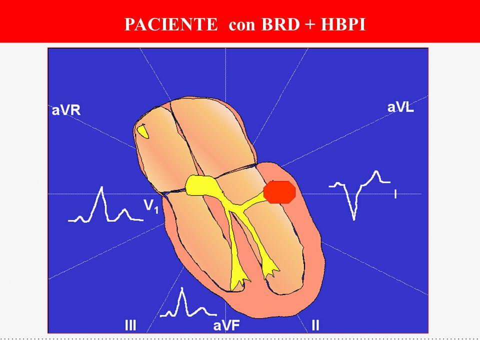 PACIENTE con BRD + HBPI