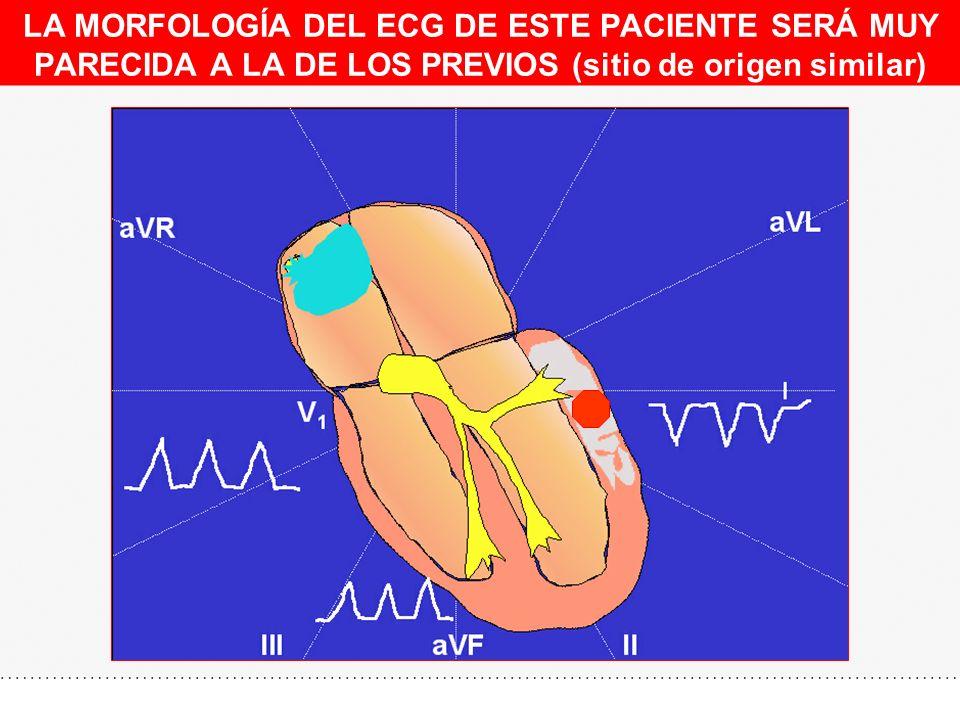 LA MORFOLOGÍA DEL ECG DE ESTE PACIENTE SERÁ MUY PARECIDA A LA DE LOS PREVIOS (sitio de origen similar)