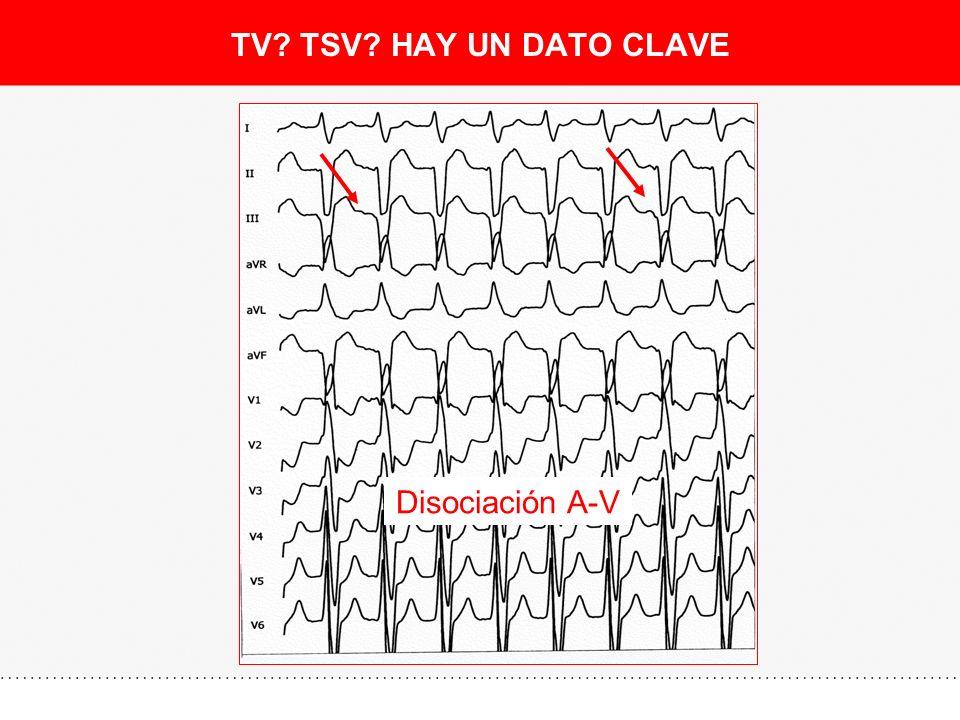 TV TSV HAY UN DATO CLAVE Disociación A-V