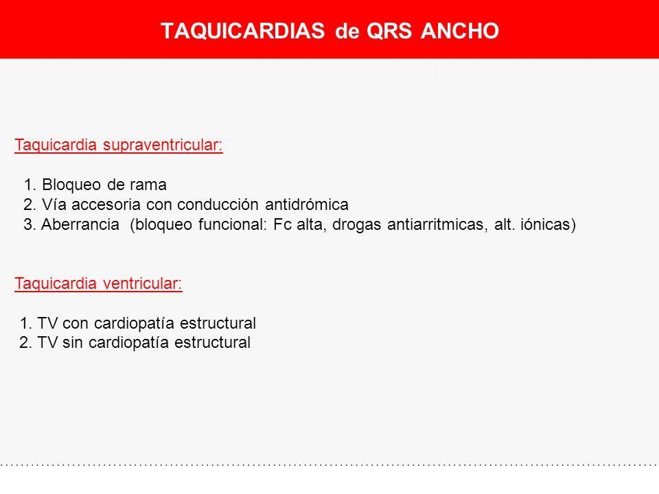 TAQUICARDIAS de QRS ANCHO
