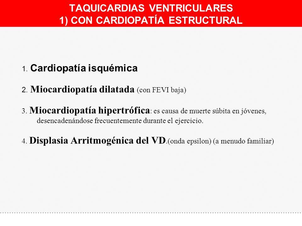 TAQUICARDIAS VENTRICULARES 1) CON CARDIOPATÍA ESTRUCTURAL