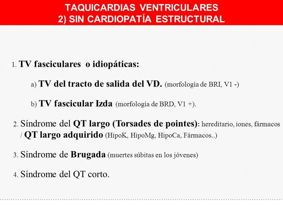 TAQUICARDIAS VENTRICULARES 2) SIN CARDIOPATÍA ESTRUCTURAL