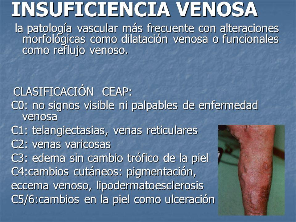 INSUFICIENCIA VENOSA la patología vascular más frecuente con alteraciones morfológicas como dilatación venosa o funcionales como reflujo venoso.