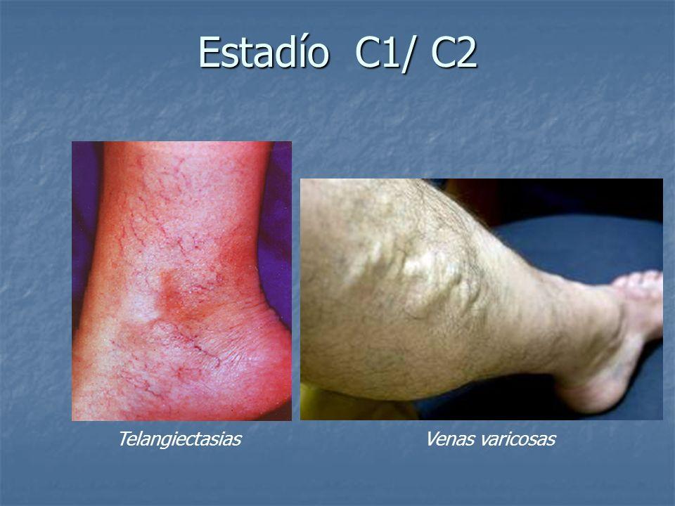 Estadío C1/ C2 Telangiectasias Venas varicosas