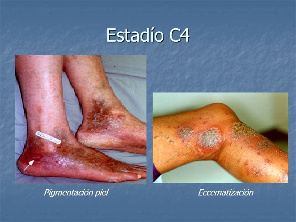 Estadío C4 Estadío C4 Pigmentación piel Eccematización