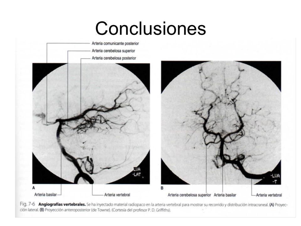 Conclusiones La anamnesis y exploración neurológica nos permiten una aproximación al diagnóstico topográfico y la extensión de la lesion.