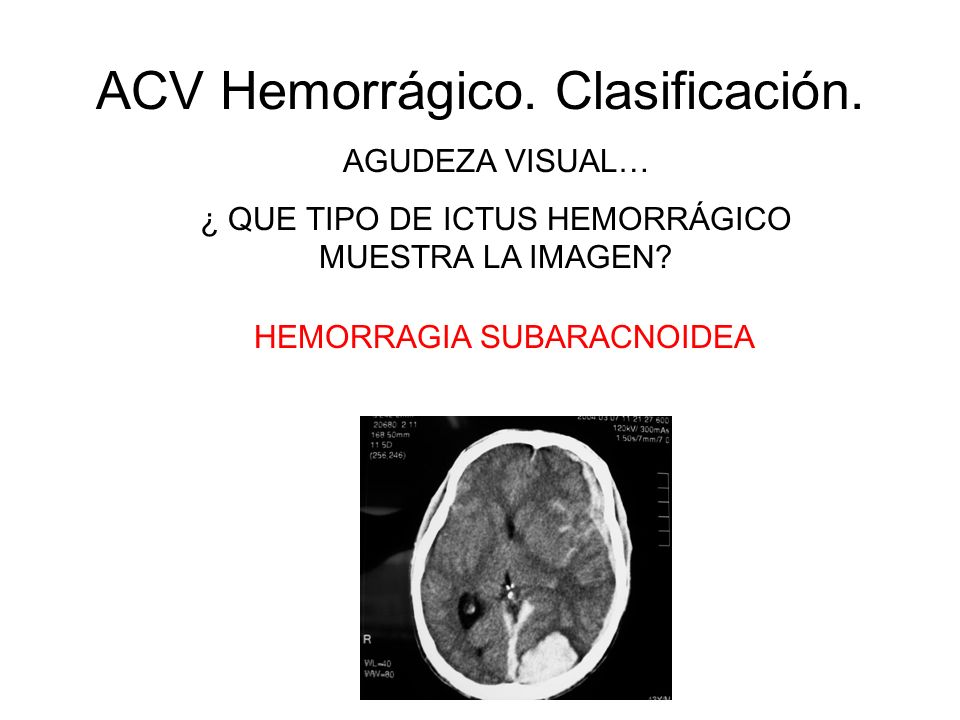 ACV Hemorrágico. Clasificación.