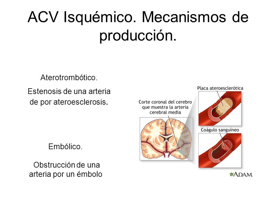 ACV Isquémico. Mecanismos de producción.