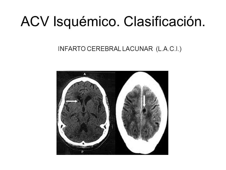 ACV Isquémico. Clasificación.