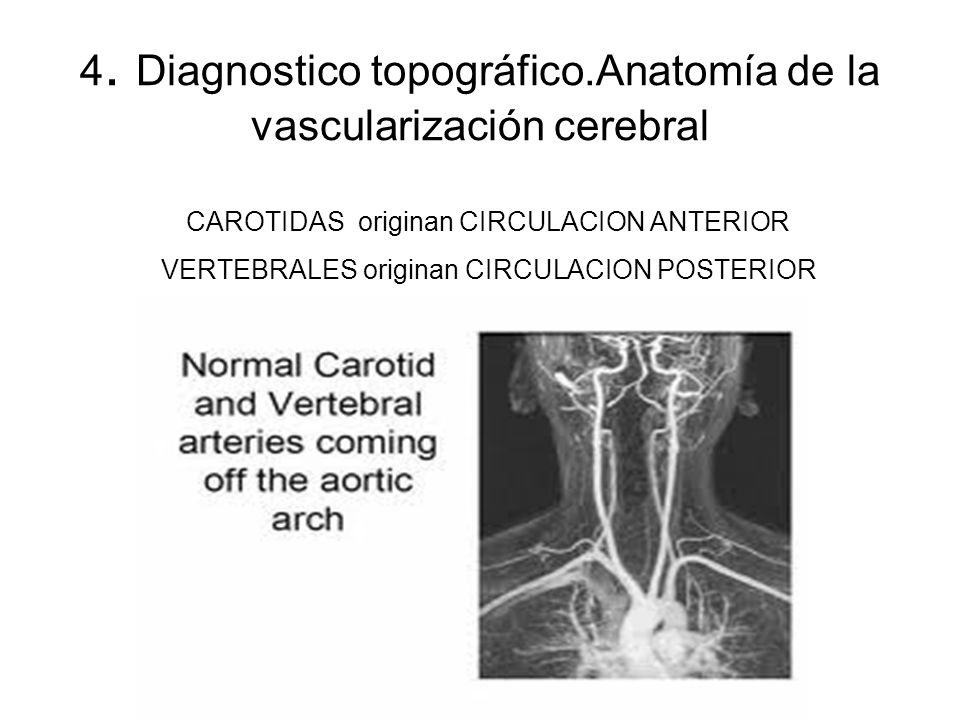 4. Diagnostico topográfico.Anatomía de la vascularización cerebral