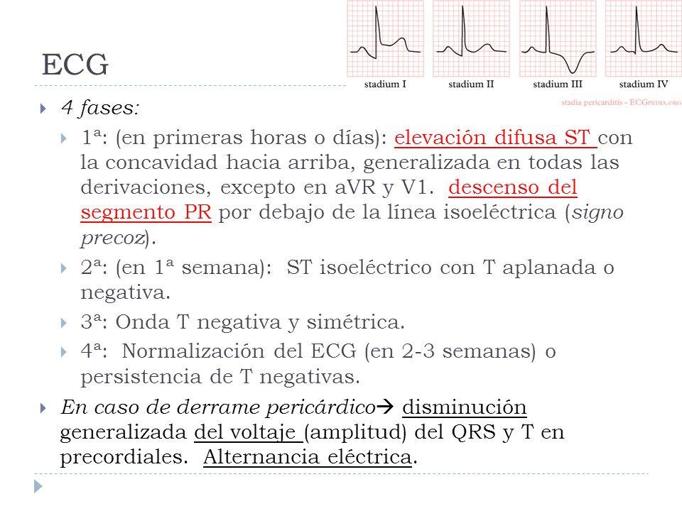 ECG4 fases: