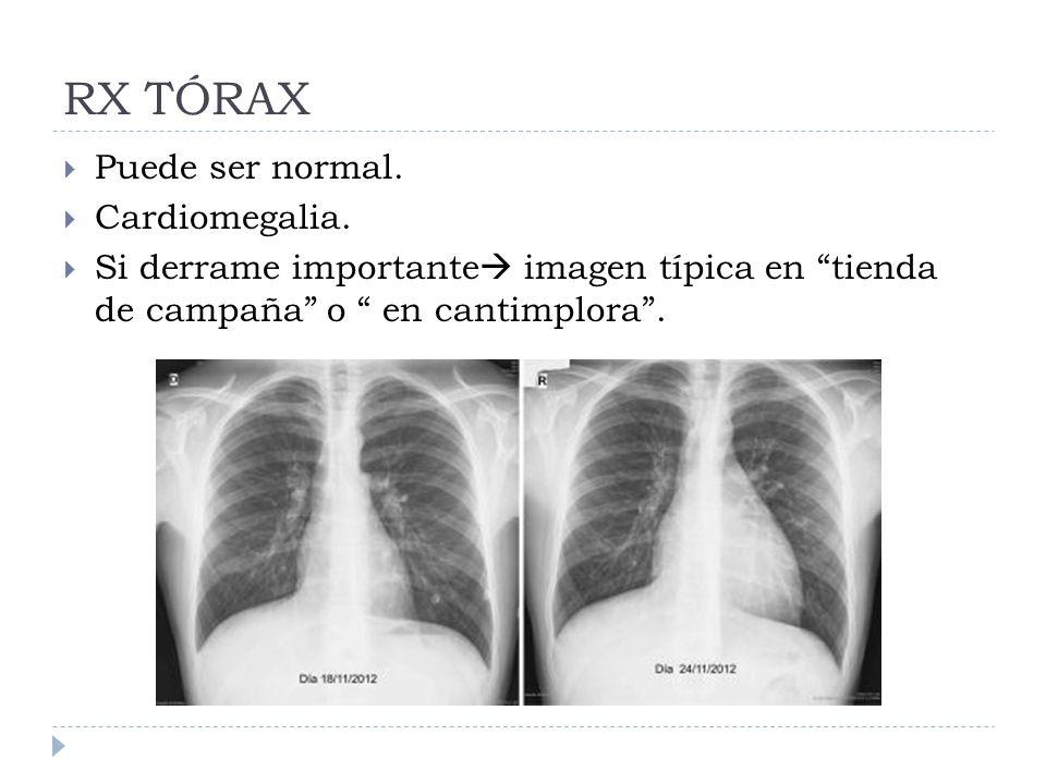 RX TÓRAX Puede ser normal. Cardiomegalia.