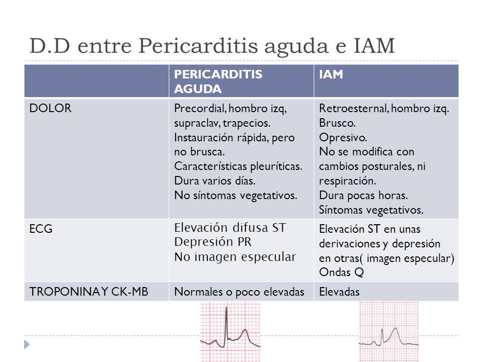 D.D entre Pericarditis aguda e IAM