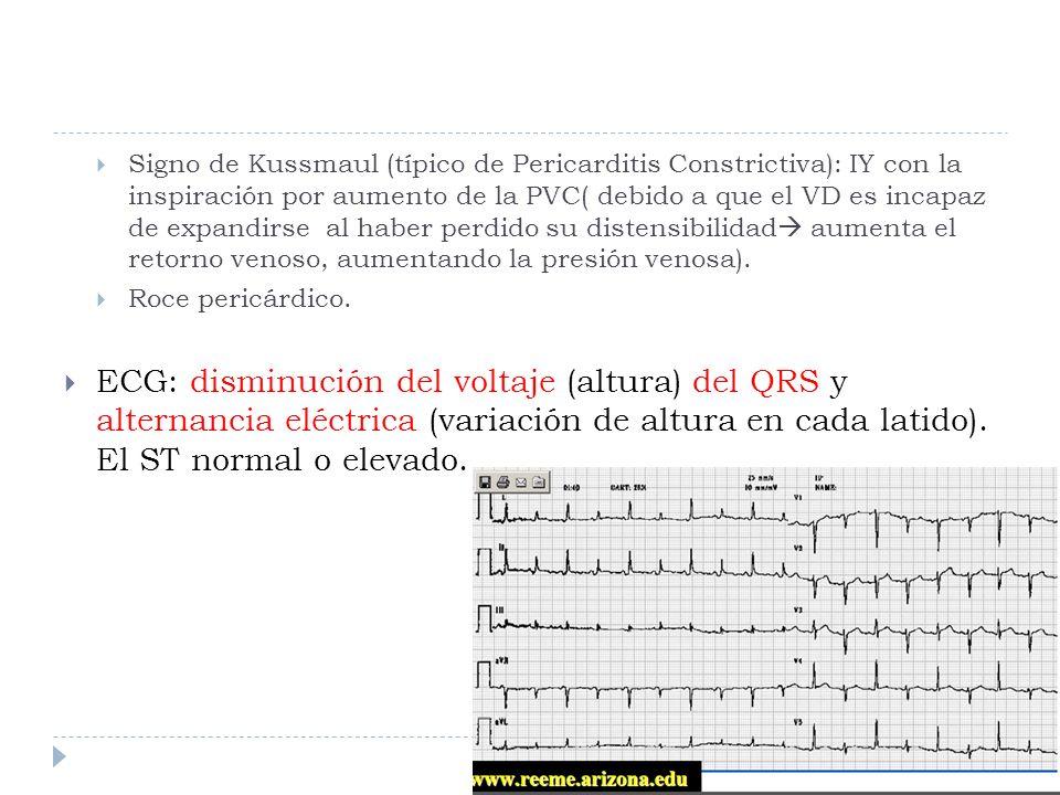 Signo de Kussmaul (típico de Pericarditis Constrictiva): IY con la inspiración por aumento de la PVC( debido a que el VD es incapaz de expandirse al haber perdido su distensibilidad aumenta el retorno venoso, aumentando la presión venosa).