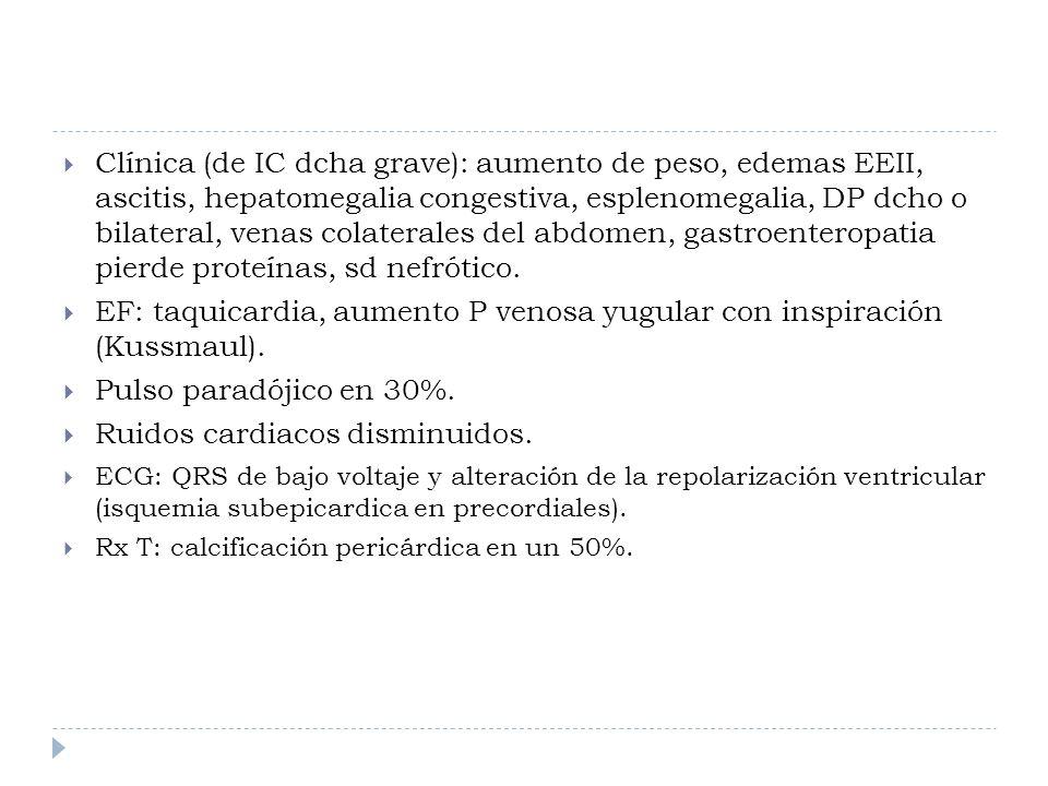 EF: taquicardia, aumento P venosa yugular con inspiración (Kussmaul).