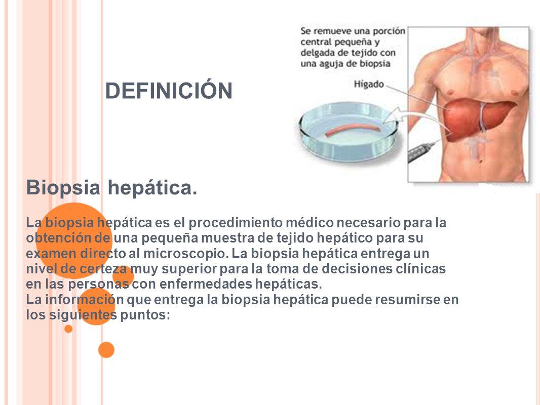 DEFINICIÓN Biopsia hepática.