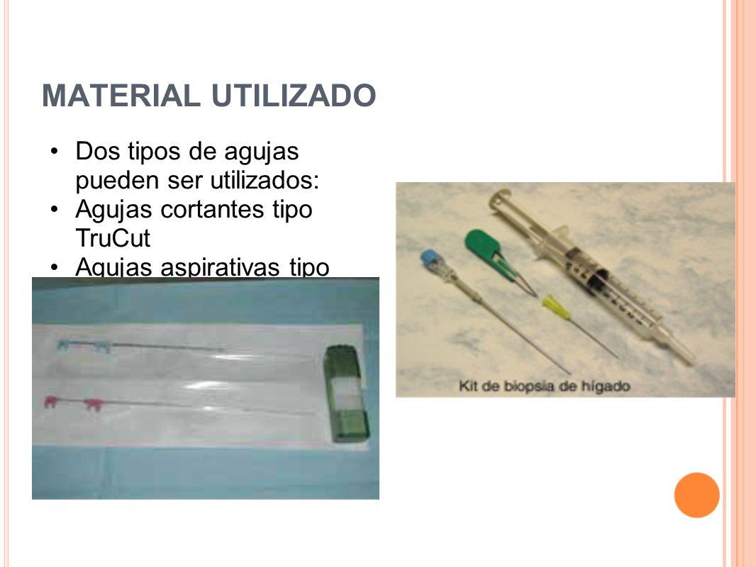MATERIAL UTILIZADO Dos tipos de agujas pueden ser utilizados: