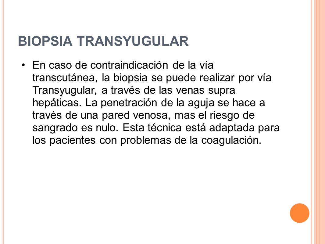 BIOPSIA TRANSYUGULAR