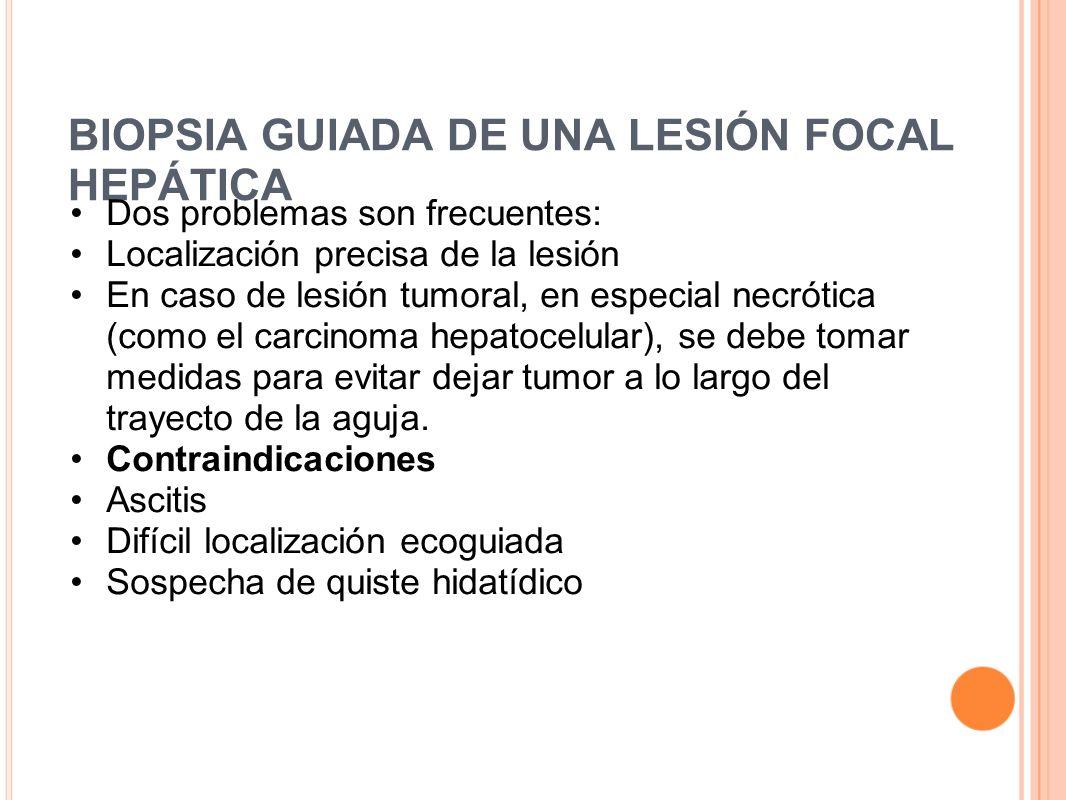 BIOPSIA GUIADA DE UNA LESIÓN FOCAL HEPÁTICA