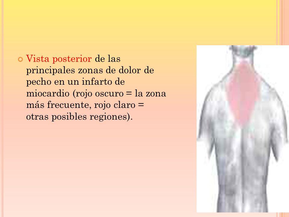 Vista posterior de las principales zonas de dolor de pecho en un infarto de miocardio (rojo oscuro = la zona más frecuente, rojo claro = otras posibles regiones).
