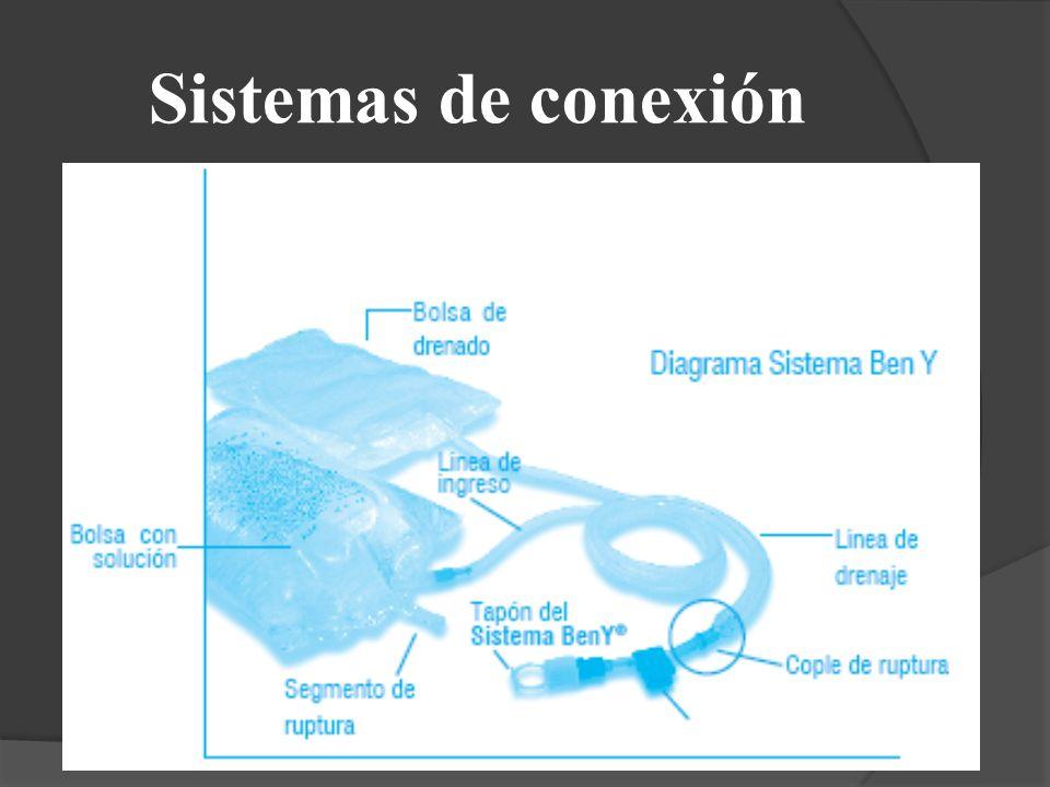 Sistemas de conexión