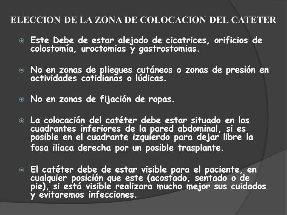 ELECCION DE LA ZONA DE COLOCACION DEL CATETER