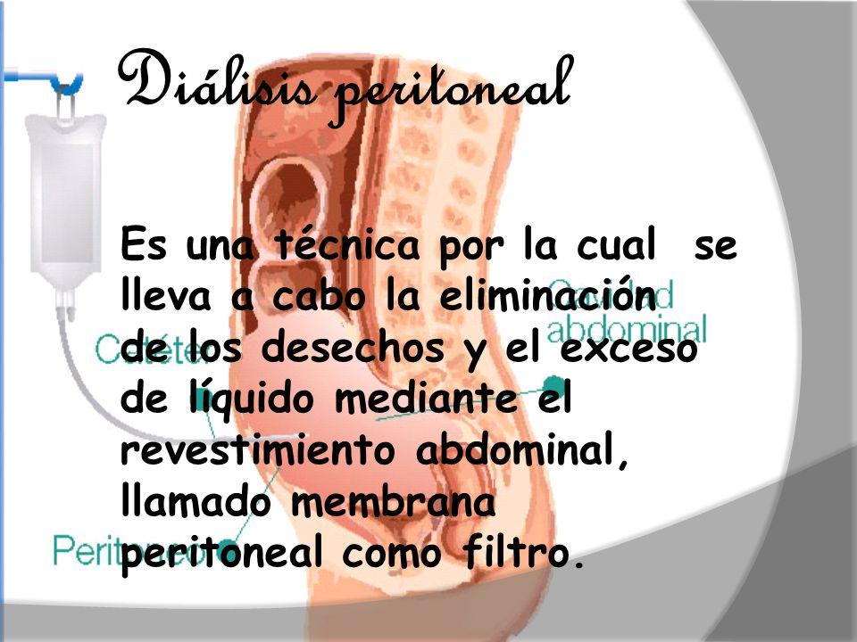 Diálisis peritoneal Es una técnica por la cual se lleva a cabo la eliminación. de los desechos y el exceso de líquido mediante el.