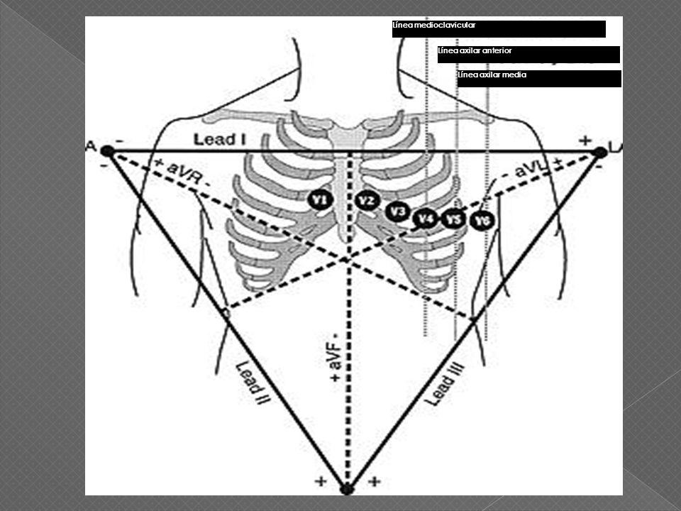Línea axilar anterior Línea medioclavicular Línea axilar media
