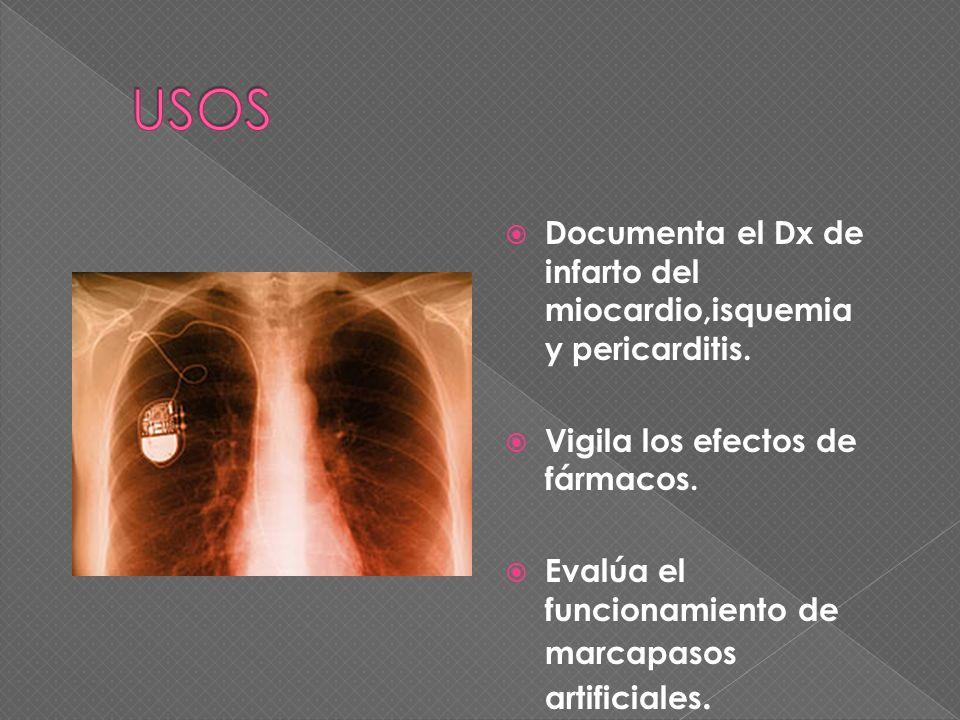 USOS Documenta el Dx de infarto del miocardio,isquemia y pericarditis.