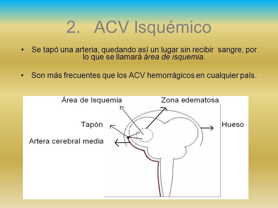 Son más frecuentes que los ACV hemorrágicos en cualquier país.