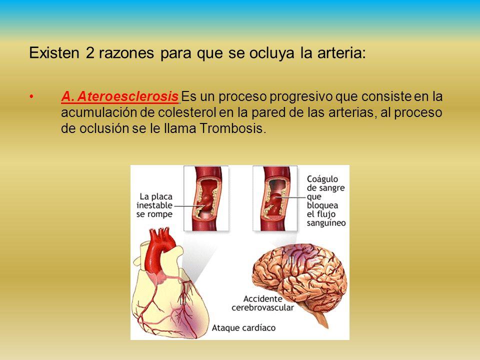 Existen 2 razones para que se ocluya la arteria: