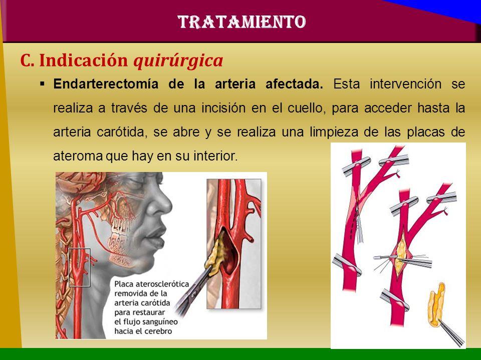 C. Indicación quirúrgica