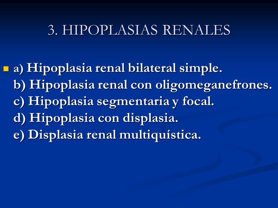 3. HIPOPLASIAS RENALES