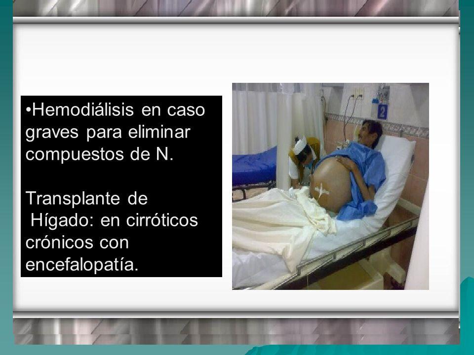 Hemodiálisis en caso graves para eliminar compuestos de N.