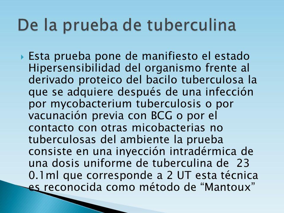 De la prueba de tuberculina