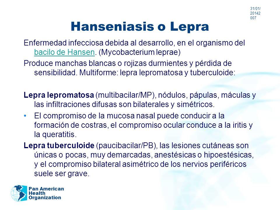 24/03/201724/03/20172007Hanseniasis o Lepra.