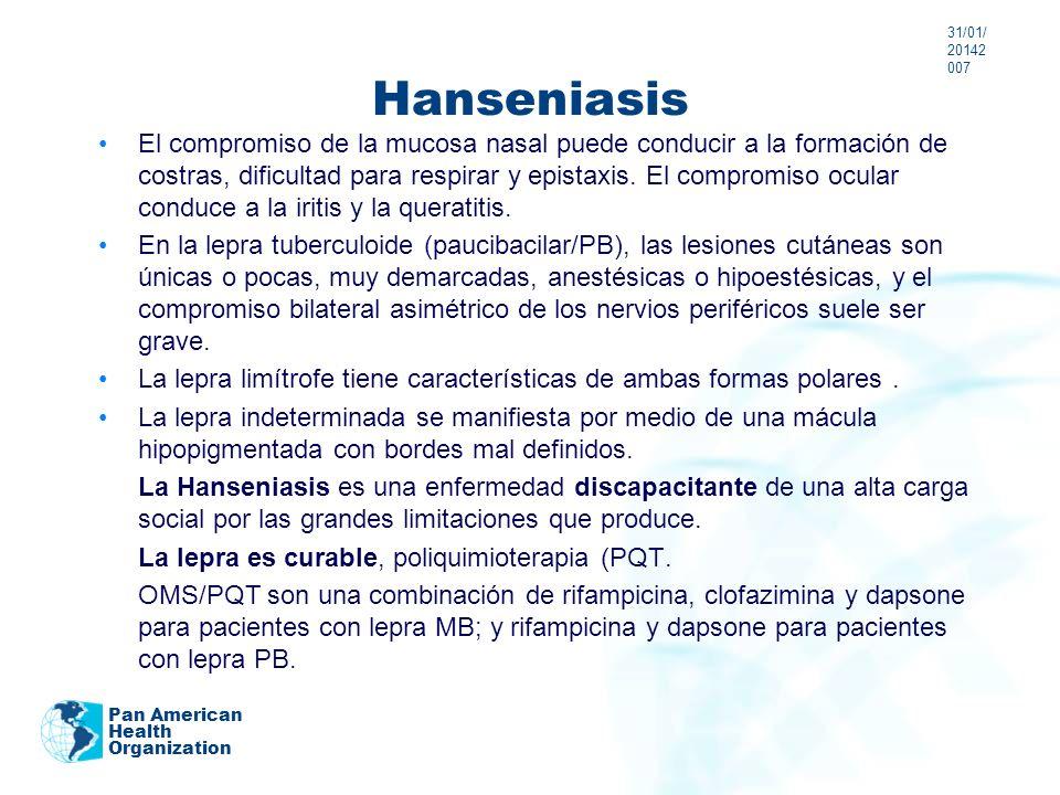 24/03/201724/03/20172007 Hanseniasis.